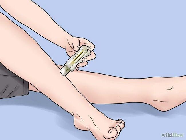 Imagen titulada eliminar las cicatrices en las piernas Paso 11