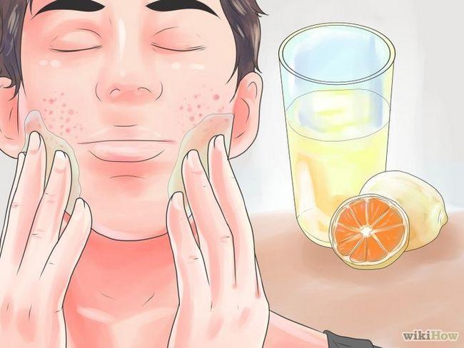 Imagen titulada Cómo deshacerse de las cicatrices del acné rápido Paso 1