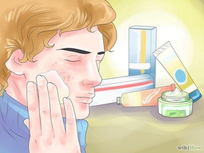 Imagen titulada Cómo deshacerse de las cicatrices del acné rápido Paso 10