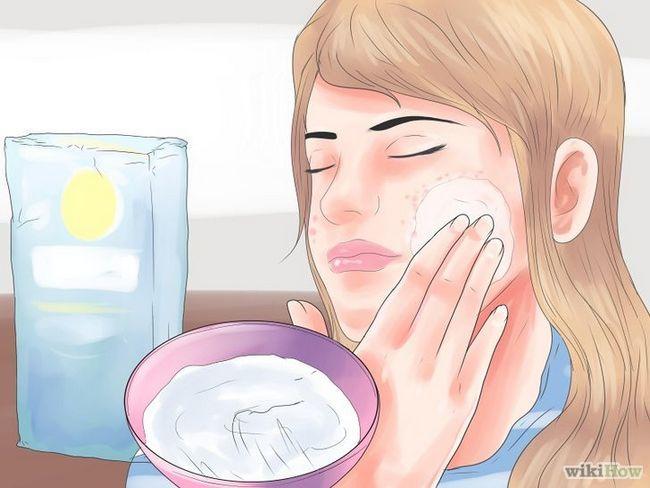 Imagen titulada Cómo deshacerse de las cicatrices del acné rápido Paso 2