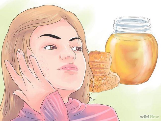 Imagen titulada Cómo deshacerse de las cicatrices del acné rápido Paso 3