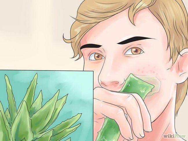 Imagen titulada Cómo deshacerse de las cicatrices del acné rápido Paso 4