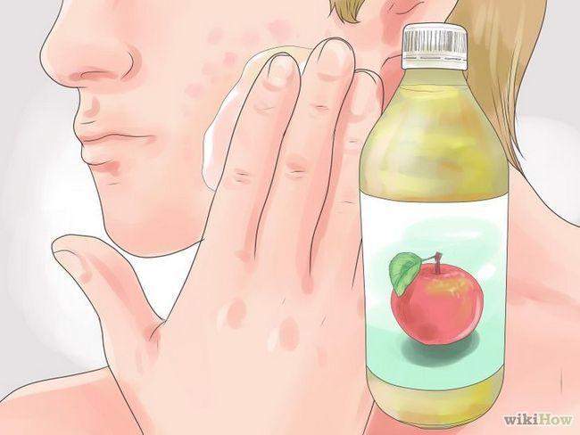 Imagen titulada Cómo deshacerse de las cicatrices del acné rápido Paso 7